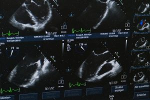 Ayrıntılı Ultrason Ne Zaman Yapılır