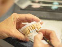 SSK Diş Protez Fiyatları | Protez diş fiyatları ne kadar?