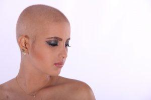 Saç Dökülmesi Hangi Hastalığın Belirtisi
