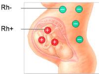Kan Uyuşmazlığı Rh/Rh Uygunsuzluğu |  Kan Uyuşmazlığı